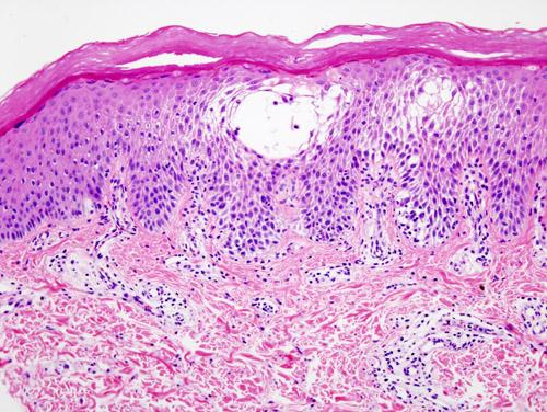Spongiotic Dermatitis and Its types