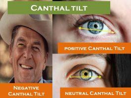 Canthal Tilt